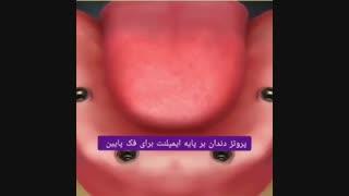 پروتز دندان بر پایه ایمپلنت برای فک پایین