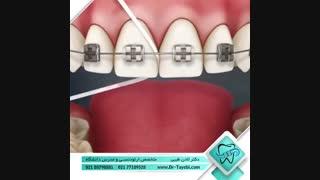 نحوه استفاده از نخ دندان | دکتر لادن طیبی