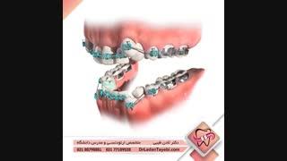 ارتودنسی با کشیدن دندان | دکتر طیبی