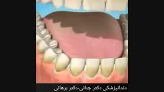 تاثیر استعمال دخانیات بر روی دندان