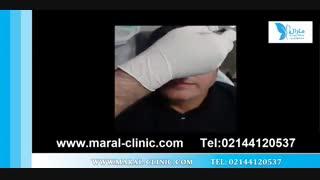 تزریق بوتاکس | فیلم تزریق بوتاکس | کلینیک پوست و مو مارال | شماره 11