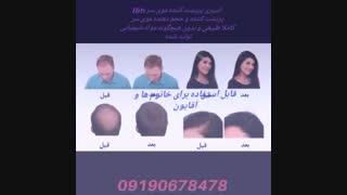 اسپری پرپشت کننده موی سر 09190678478 اسپری حجم دهنده مو سر  بهترین اسپری موی سر