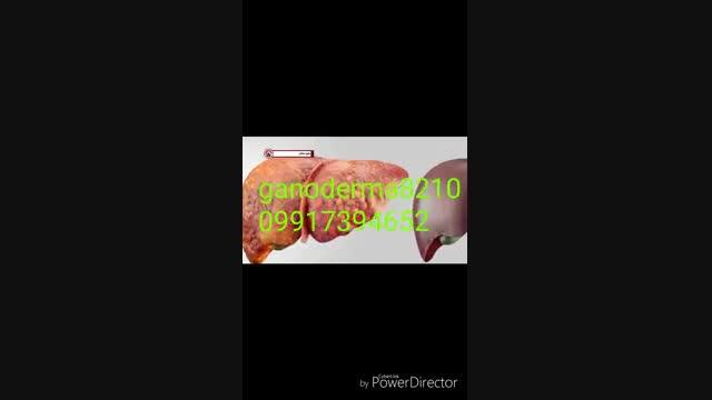 پیشگیری ازکبد چرب درمان کبد چرب گانودرما کبد چرب علائم کبد چرب علایم کبدچرب