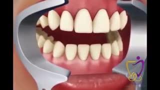 فیلم سفید کردن دندان با بلیچینگ