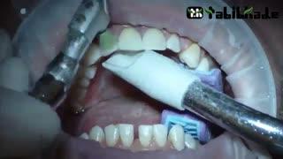 شیوه انجام ونیر کامپوزیت دندان