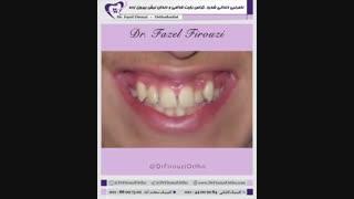 درمان نامرتبی دندانی بسیار شدید با ارتودنسی | دکتر فیروزی