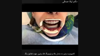 کامپوزیت ونیر ده دندان بالا و انجام بلیچینگ دندان های فک پایین جهت تطابق رنگ