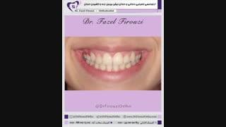 درمان بی نظمی دندانی | دکتر فیروزی