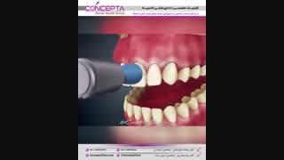 سفید کردن دندان (بلیچینگ) | کلینیک کانسپتا