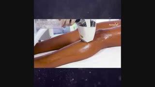 فیلم لیزر موهای زائد پا با دستگاه مدیواستار