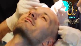 کاشت مو | فیلم کاشت مو | کلینیک پوست و مو مارال | شماره 13