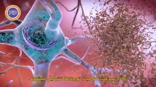 روز جهانی آلزایمر 2019: آلزایمر، اختلال پیشروندهی عملکرد مغزی