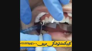 ترمیم کامپوزیتی دندان چیست؟