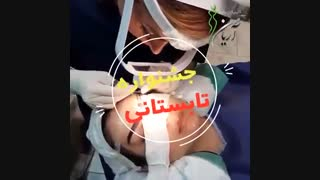 فیلم کاشت ابرو در کلینیک کاشت مو و زیبایی آریامن